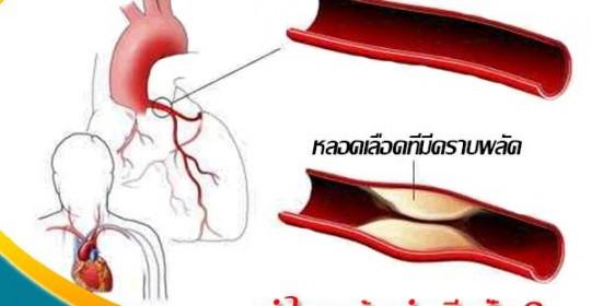ให้คีเลชั่นช่วยดูแลหลอดเลือดของคุณ !!!