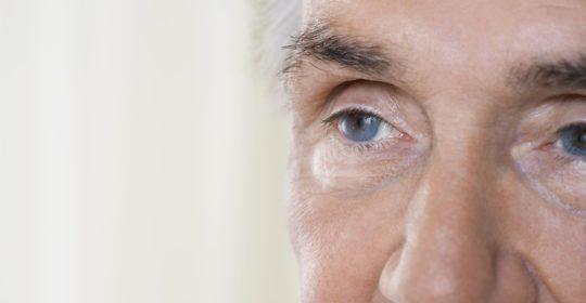 """วัย 40 กับ """"ต้อหิน""""..ภัยเงียบที่คุกคามการมองเห็น ใครๆก็เป็นได้ (Glaucoma)"""